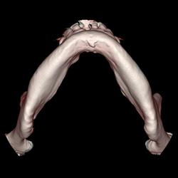 デジタルインプラント診断用CT撮影