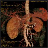 大動脈3D